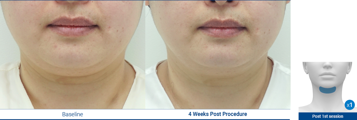 DoubleChin_190103_Proven-Results_1