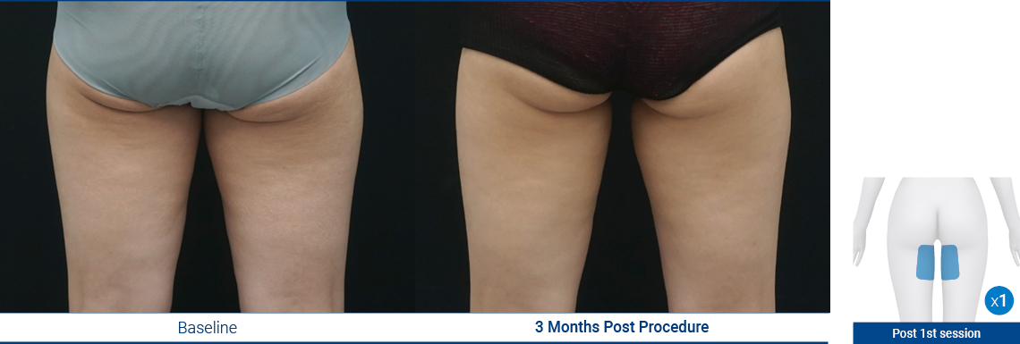 Thighs_190103_Proven-Results_7