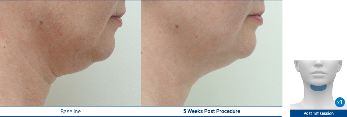 DoubleChin_190103_Proven-Results_2
