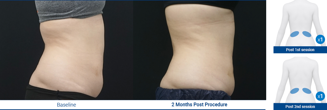 LoveHandles_190103_Proven-Results_6